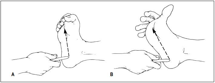 Dấu hiệu Babinski: dấu hiệu triệu chứng và nguyên nhân