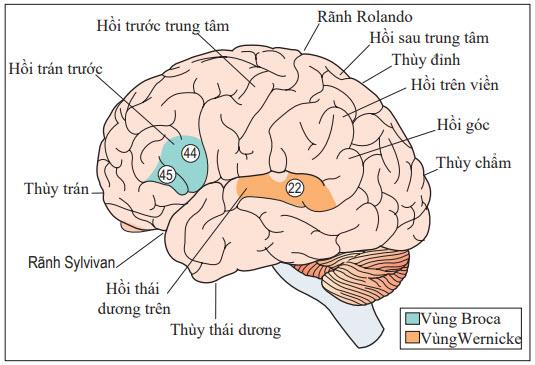 Thất ngôn Broca (thất ngôn diễn đạt): dấu hiệu triệu chứng và nguyên nhân